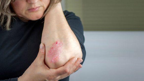Mulher com psoriase no cotovelo